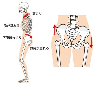 「産後の骨盤の捻じれ」の画像検索結果